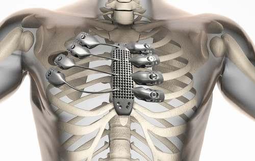 铝合金3D打印技术开启铝板制造新篇章 -第5张
